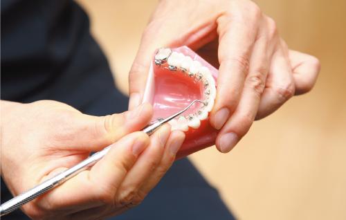 舌側矯正治療では、舌に当たりにくく、発音への影響も少ない小さな装置を使用