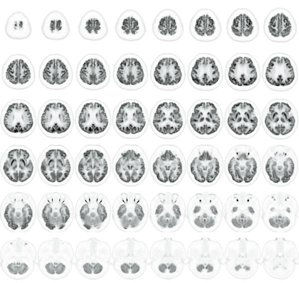 脳のPET横断画像で、細かい構造が明瞭に描出されている