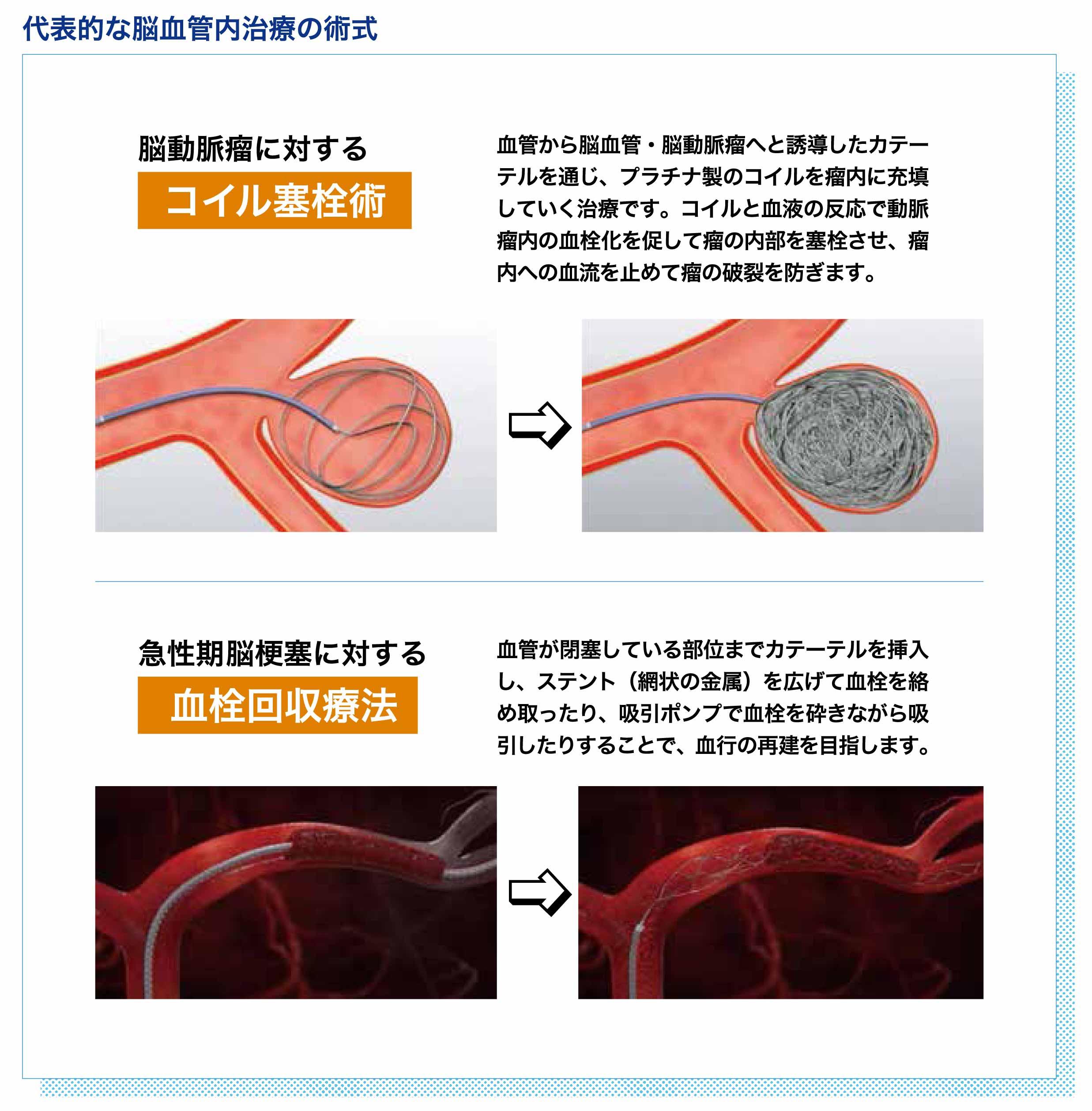 脳血管内1
