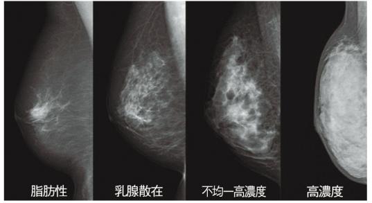 高濃度乳腺の場合、乳腺が白く映る