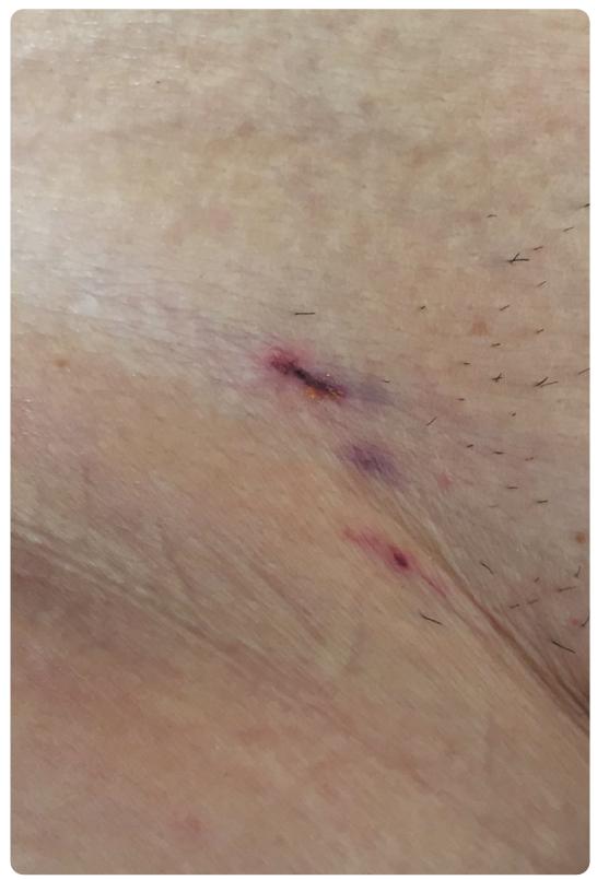 クロスオーバーテクニックとパンクチャー法を併用して大腿部アプローチを実施。右大腿穿刺部の傷は3~4㍉程度。これはTAVI2日後の写真で、この後傷が治癒することでさらに目立たなくなる