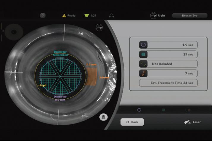 装置のモニタで照射位置を緻密に確認していく